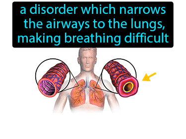 Asthma Definition Flashcard